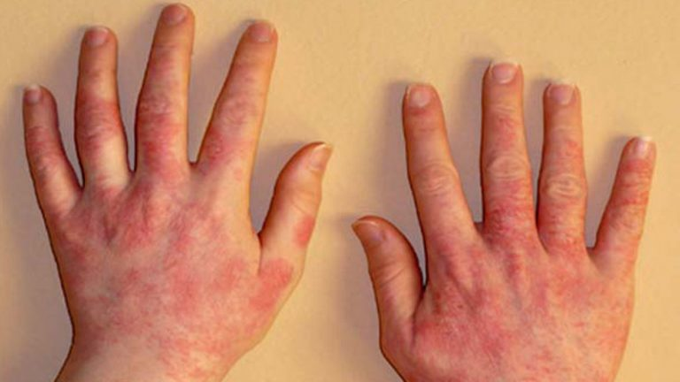 Фото аллергия на протеины латекса перчаток
