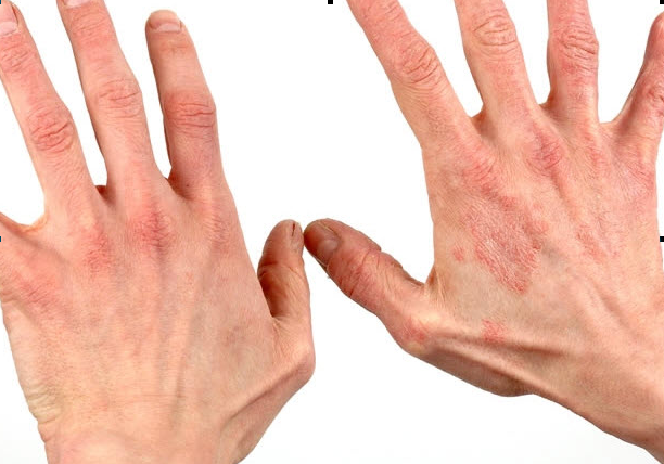 Фото дерматит на руках