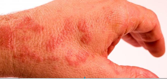 Фото аллергия на руках IV тип от перчаток
