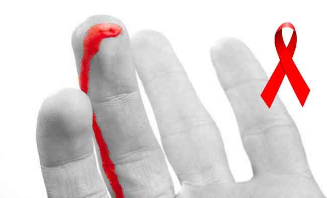 Фото прокол хирургической перчатки