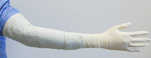 Акушерская перчатка
